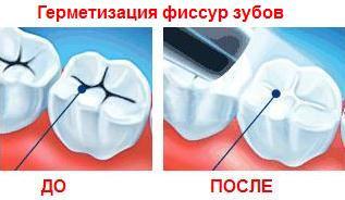 Материалы для запечатывания фиссур зубов у детей