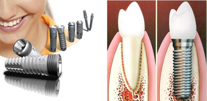 Стоматология и имплантация