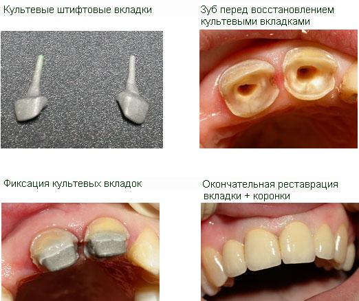 Как наращивают зуб на оставшийся корень